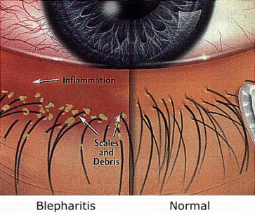 Blepharitis comparison to normal