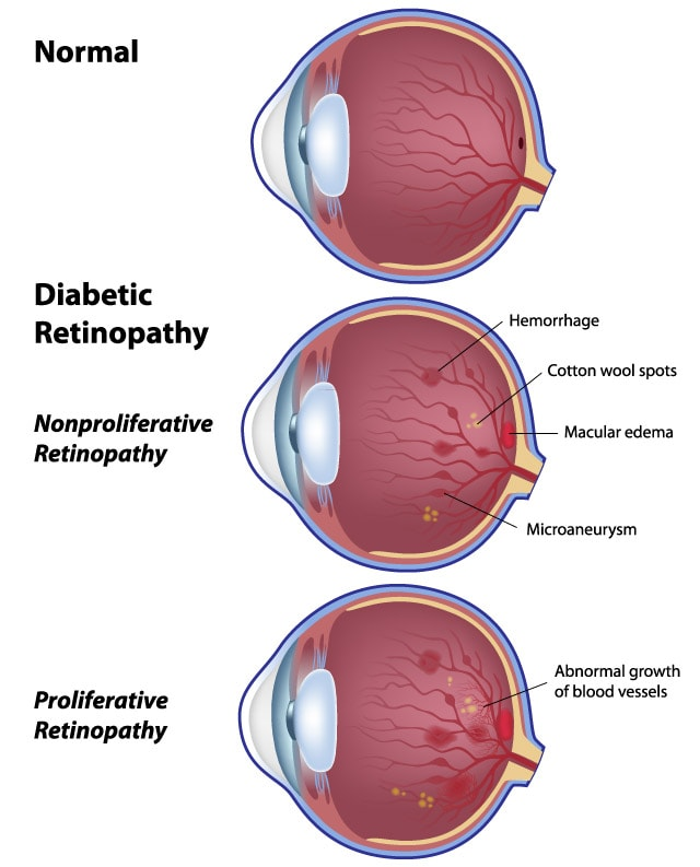 Diabetic retinopathy - North Queensland Eye Clinic