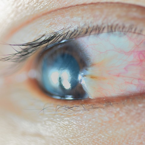 Pterygium - North Queensland Eye Clinic
