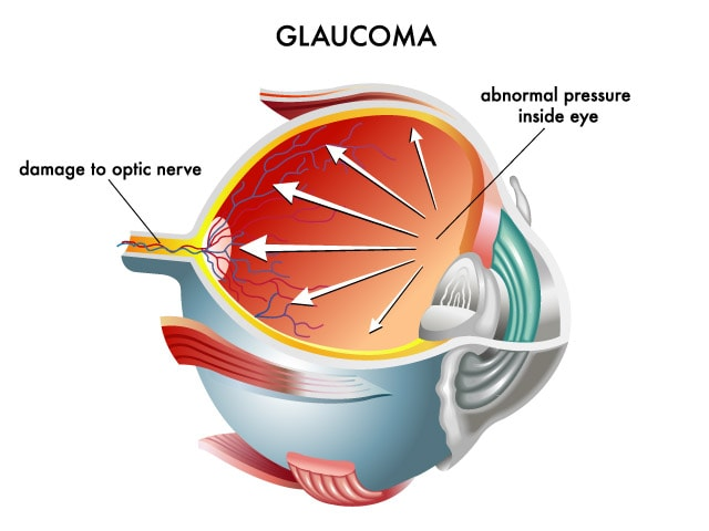 Glaucoma - North Queensland Eye Clinic