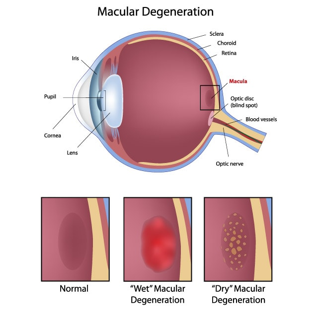 Macular Degeneration- North Queensland Eye Clinic